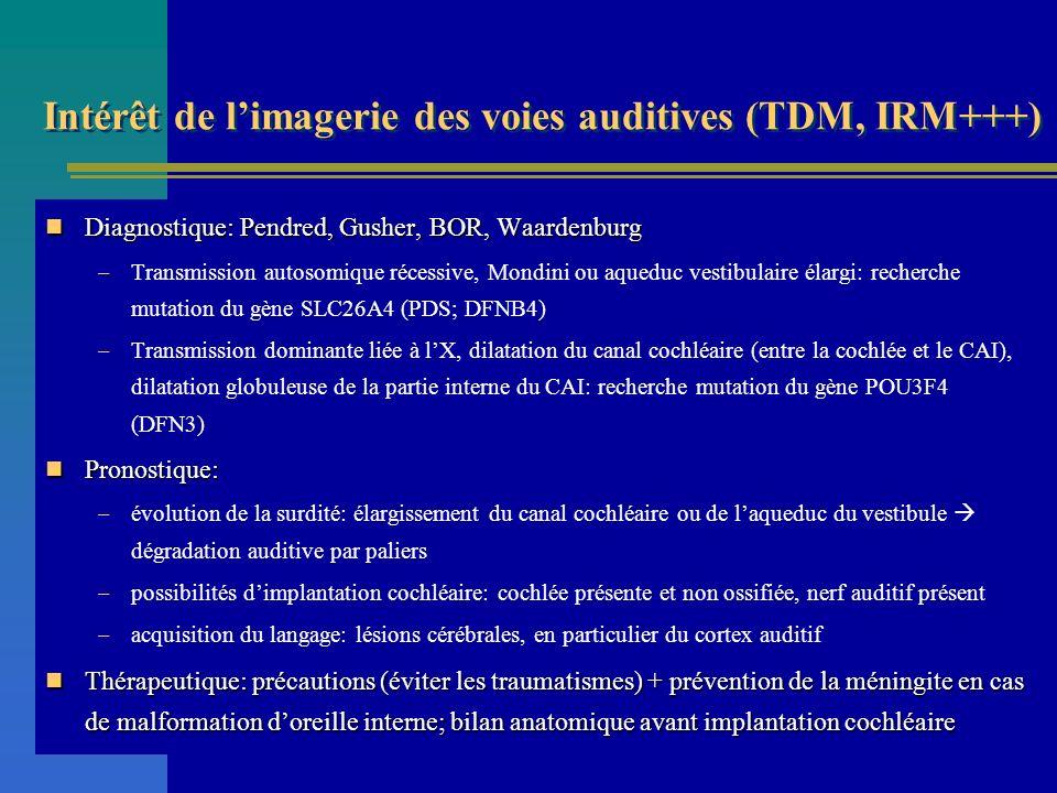 Intérêt de l'imagerie des voies auditives (TDM, IRM+++)
