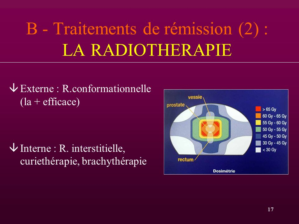 B - Traitements de rémission (2) : LA RADIOTHERAPIE