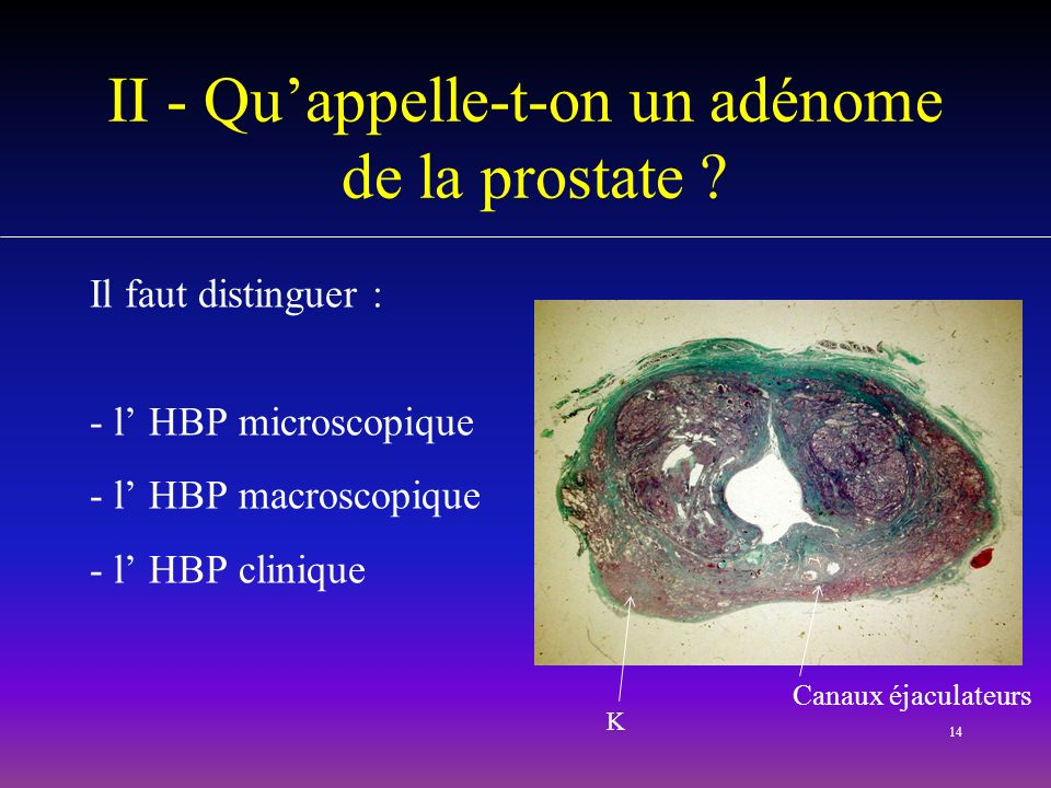 II - Qu'appelle-t-on un adénome de la prostate