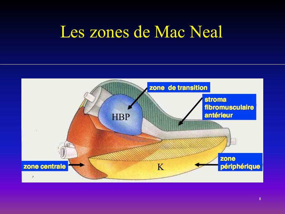 Les zones de Mac Neal HBP K MONTRER PROSTATE DEMONTABLE