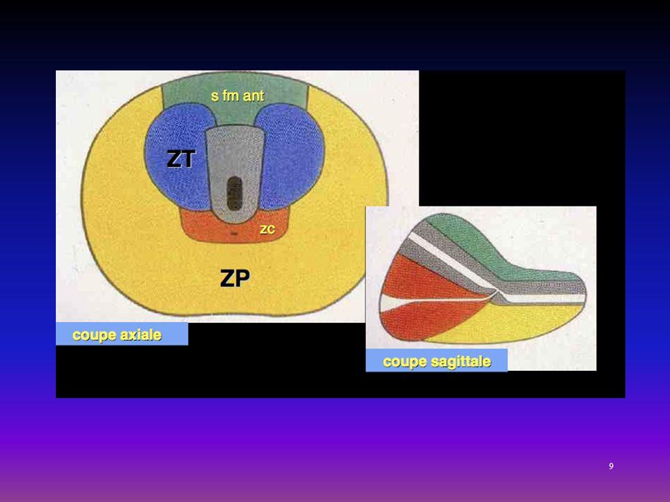 4 zones :