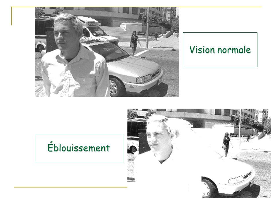 Vision normale Éblouissement