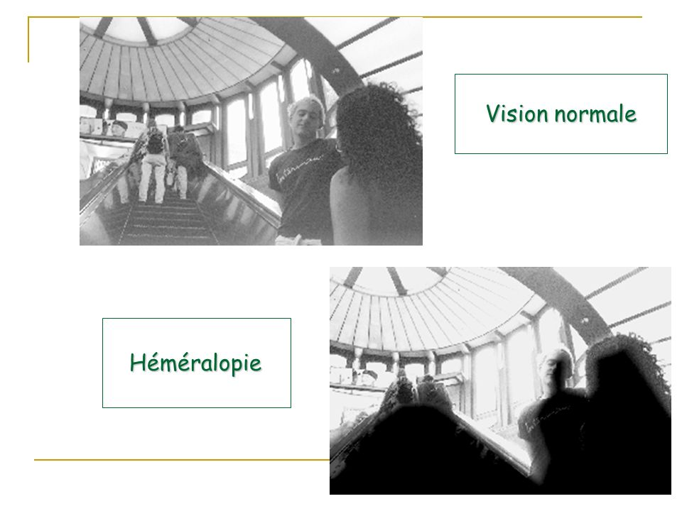 Vision normale Héméralopie
