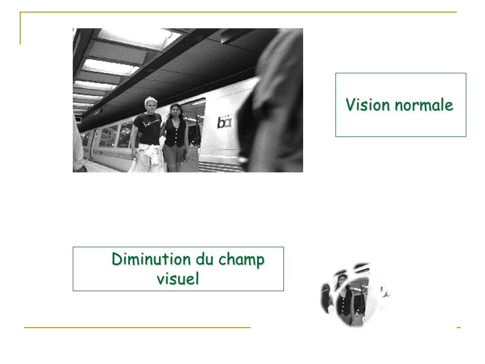Diminution du champ visuel
