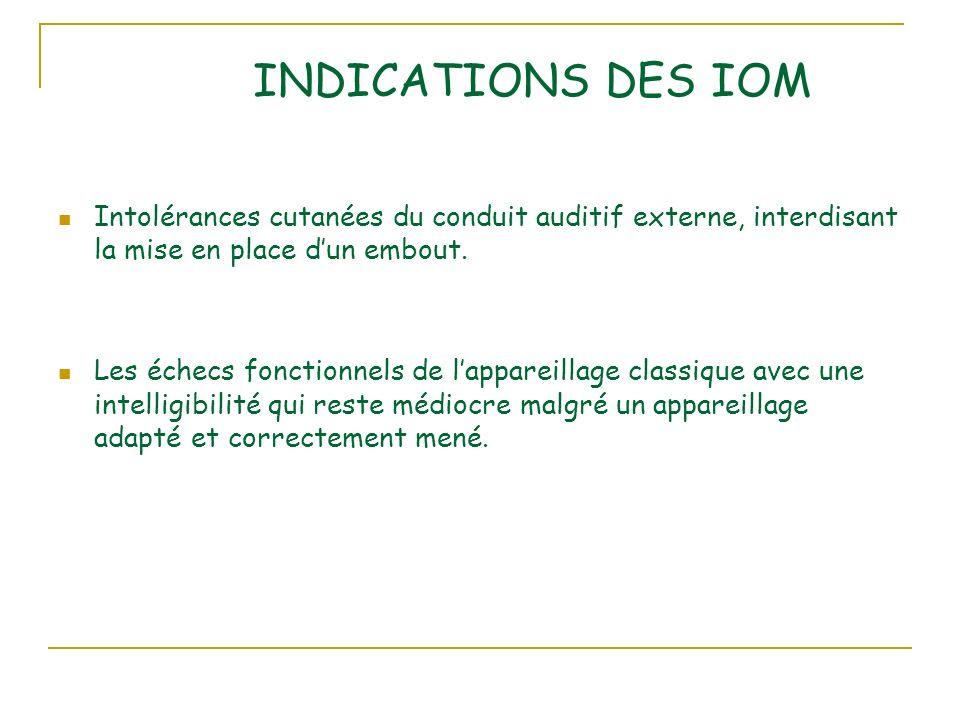 INDICATIONS DES IOM Intolérances cutanées du conduit auditif externe, interdisant la mise en place d'un embout.