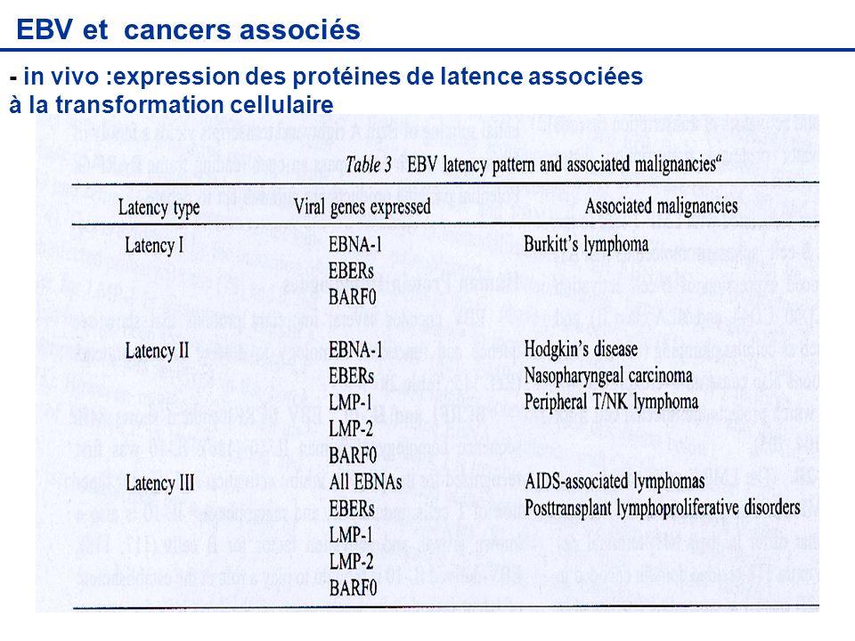 EBV et cancers associés