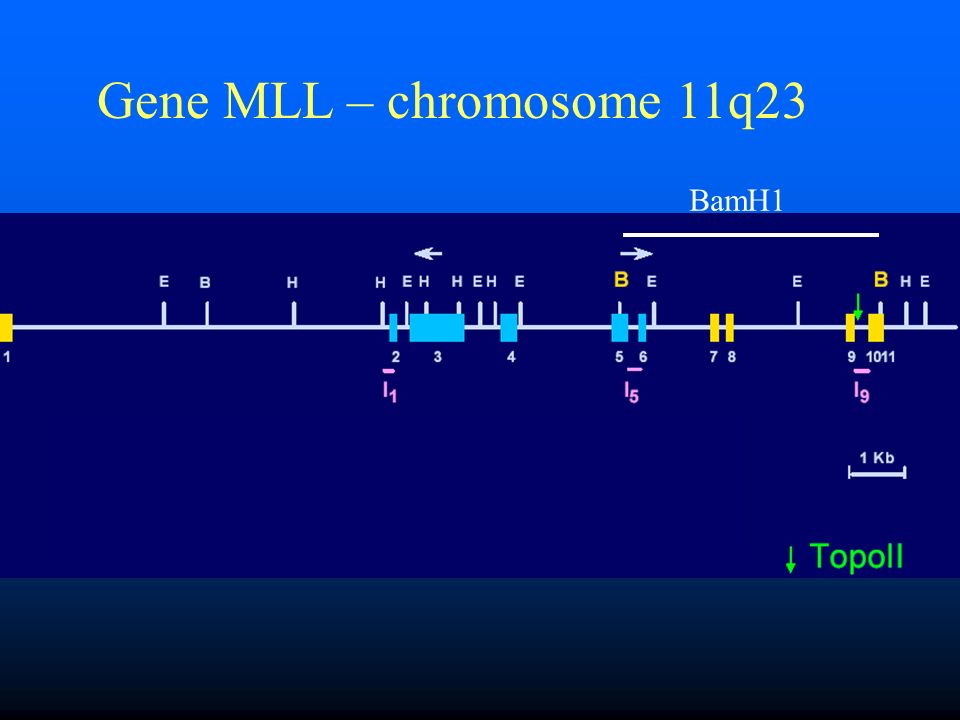 Gene MLL – chromosome 11q23 BamH1