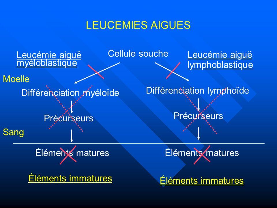 LEUCEMIES AIGUES Cellule souche Leucémie aiguë lymphoblastique