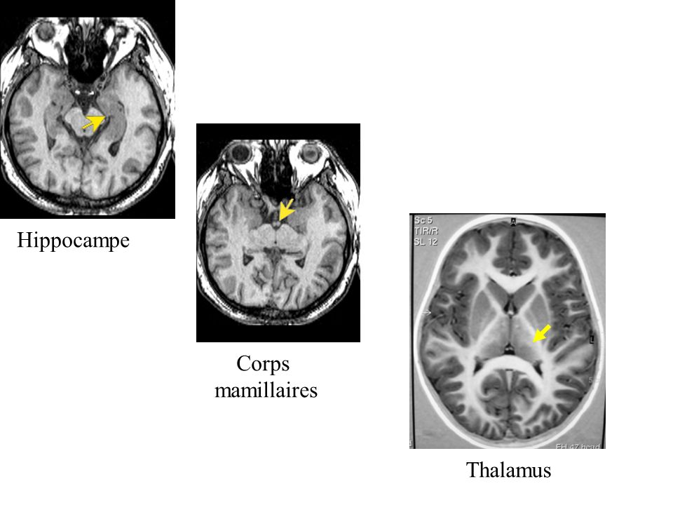 Hippocampe Corps mamillaires Thalamus