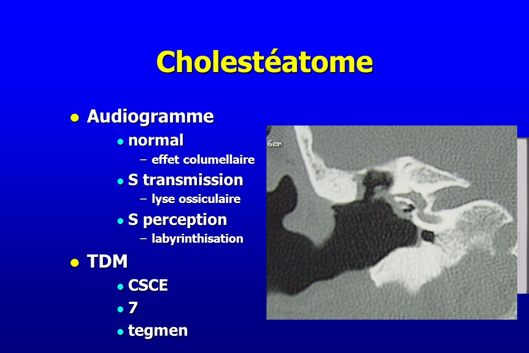 Cholestéatome Audiogramme TDM normal S transmission S perception CSCE