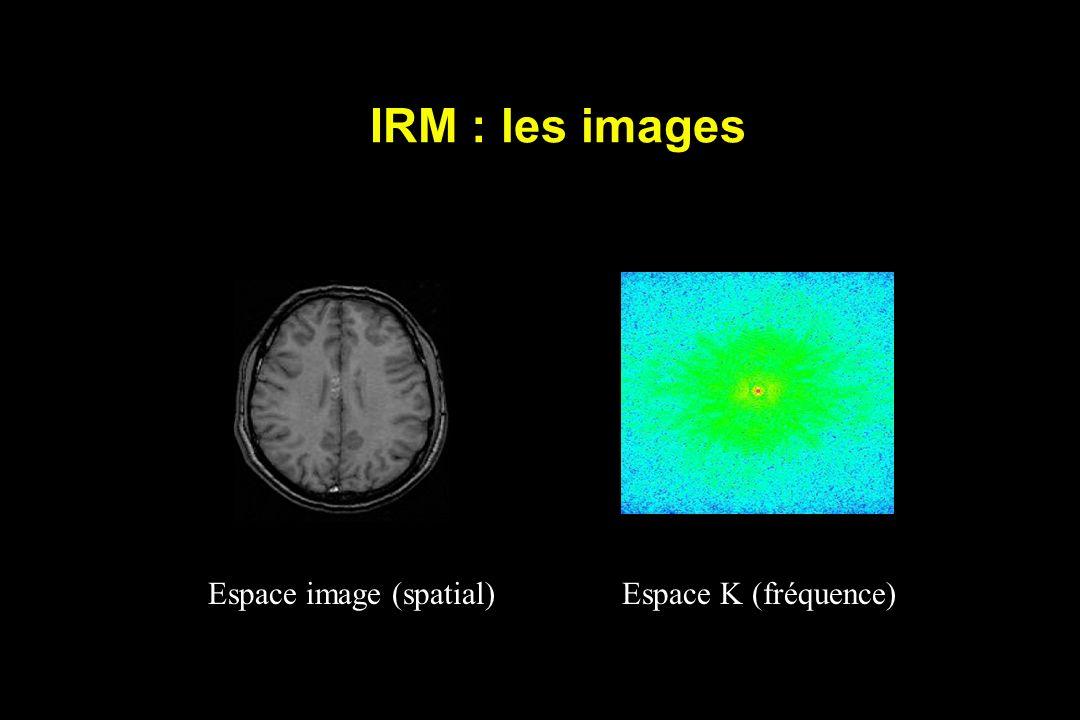 IRM : les images Espace image (spatial) Espace K (fréquence)