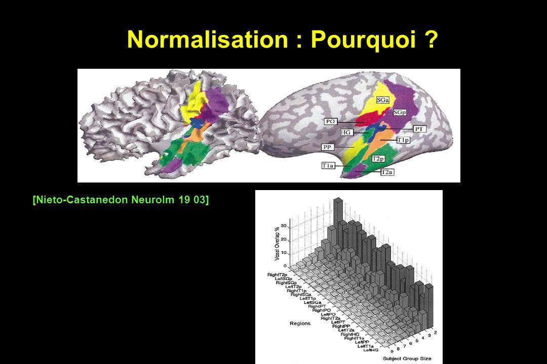 Normalisation : Pourquoi