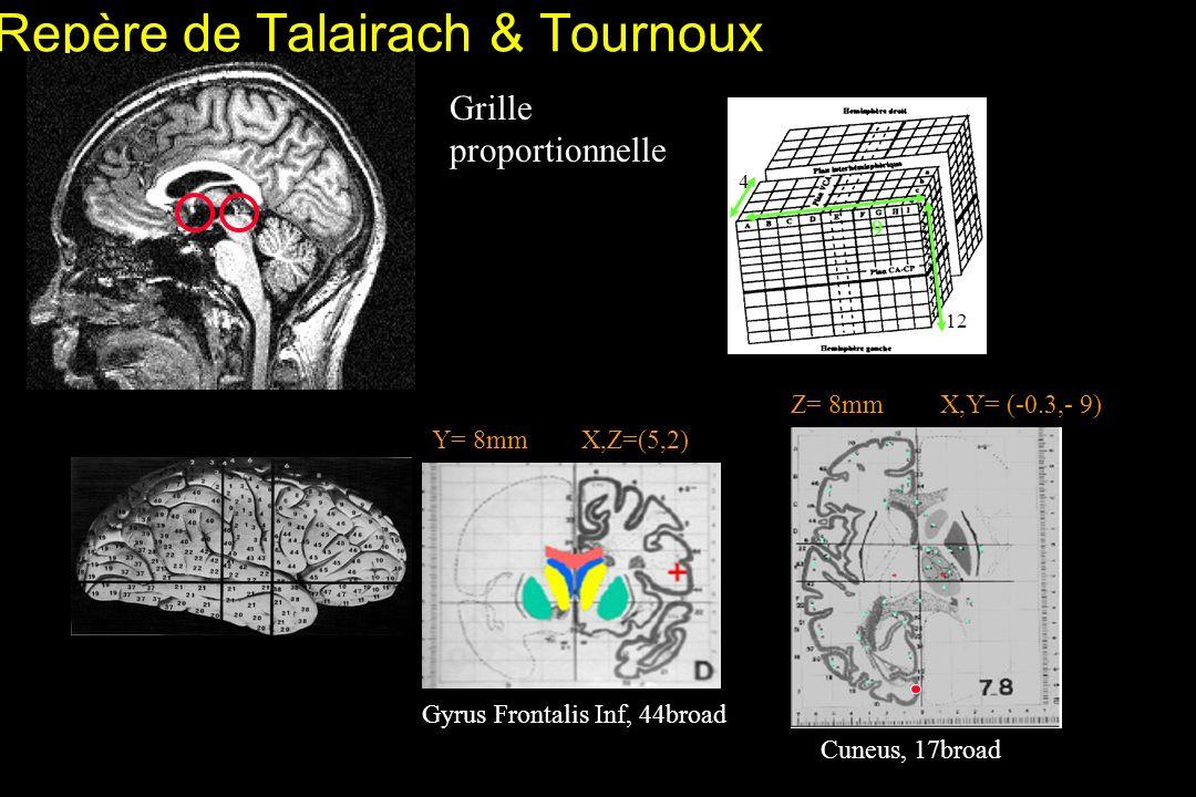 Repère de Talairach & Tournoux