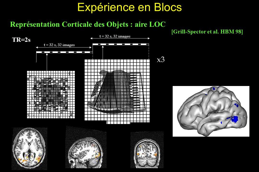 Expérience en Blocs Représentation Corticale des Objets : aire LOC x3