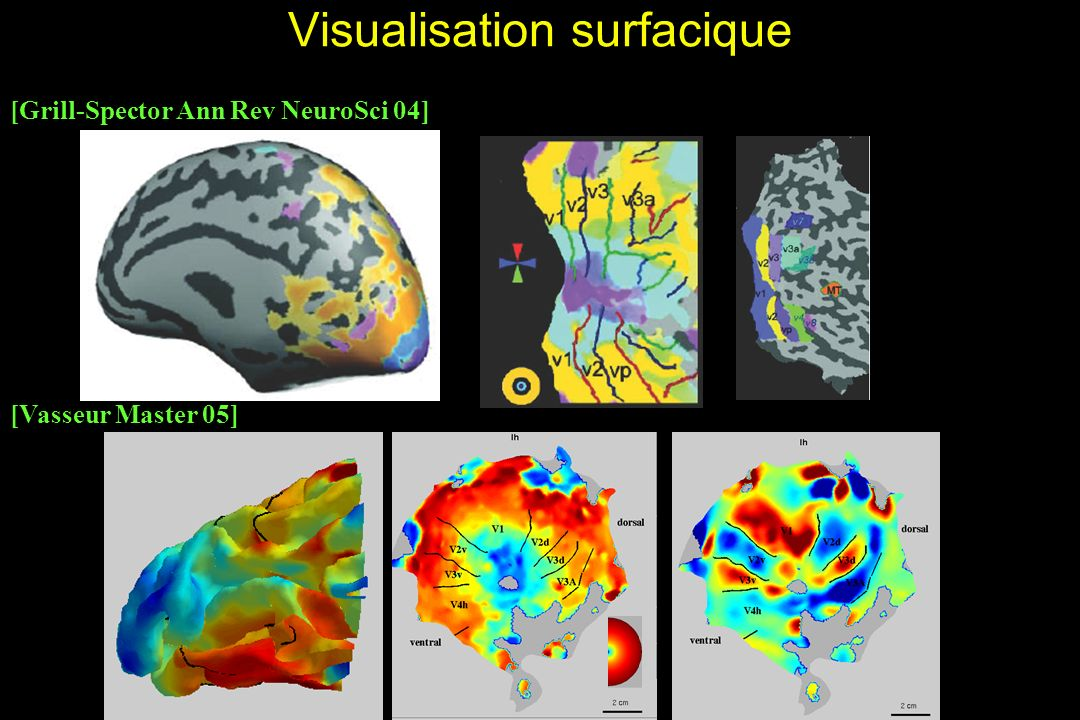 Visualisation surfacique