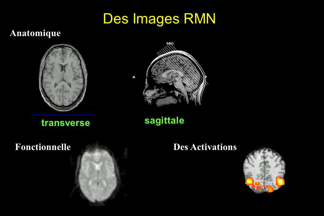 Des Images RMN Anatomique transverse sagittale Des Activations