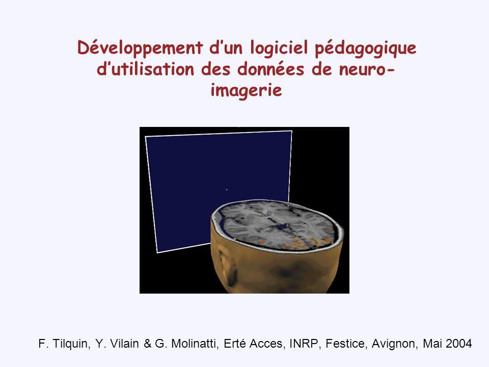 Développement d'un logiciel pédagogique d'utilisation des données de neuro-imagerie