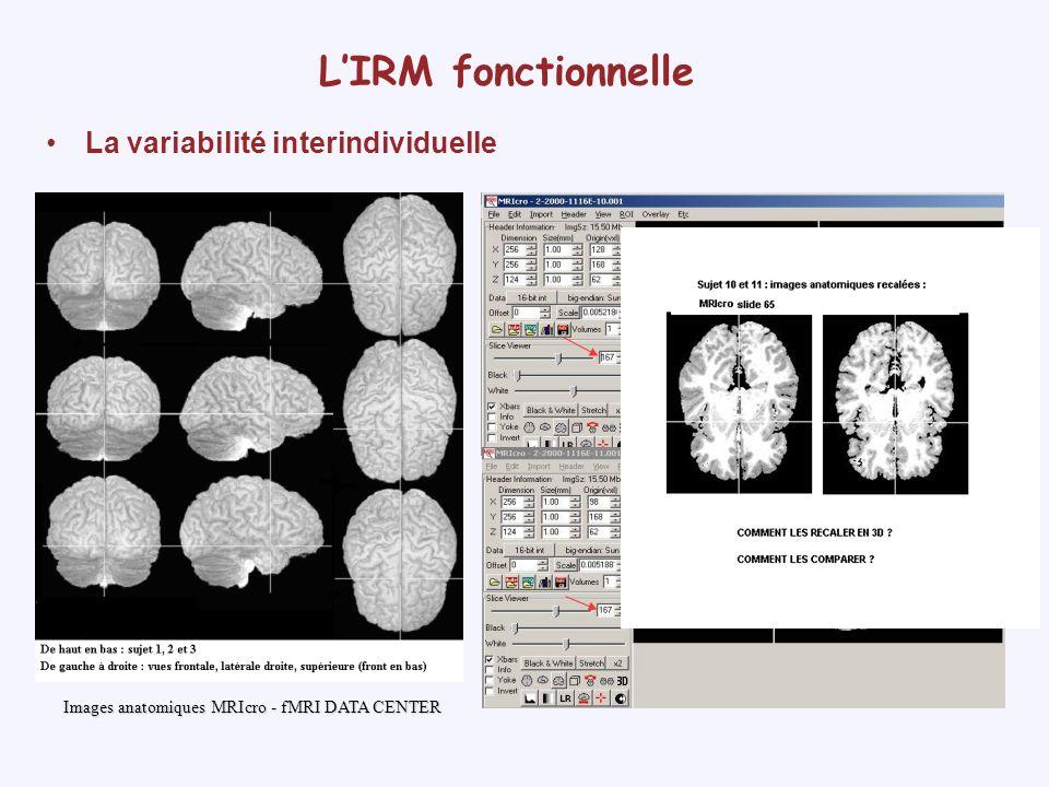 L'IRM fonctionnelle La variabilité interindividuelle