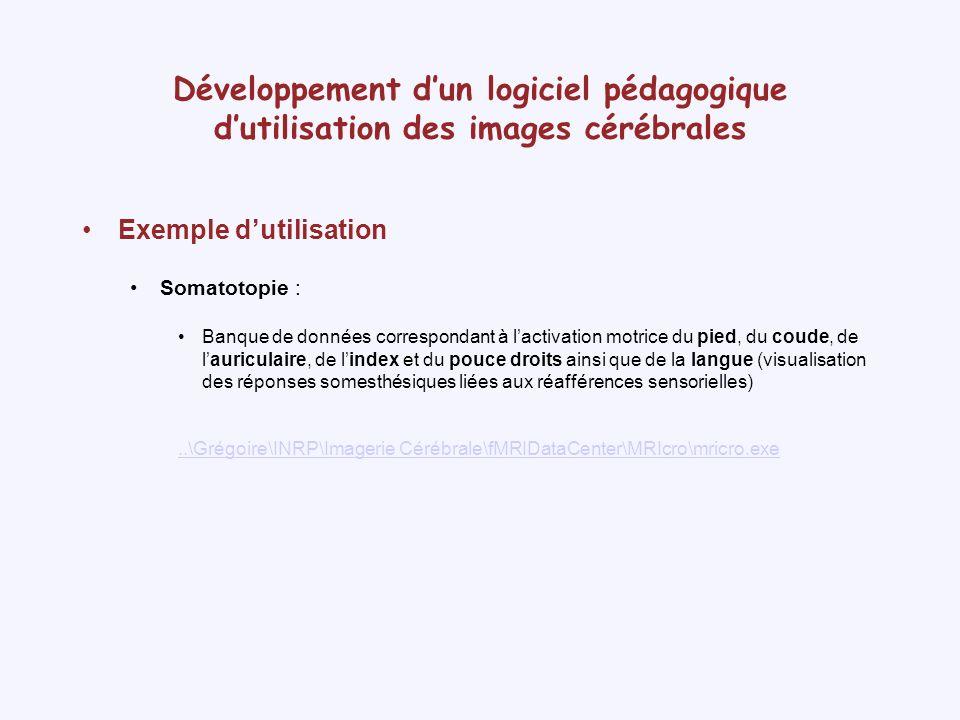 Développement d'un logiciel pédagogique d'utilisation des images cérébrales