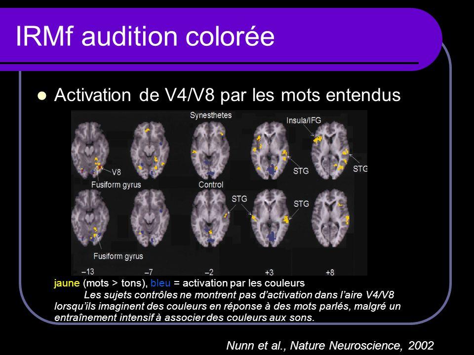 IRMf audition colorée Activation de V4/V8 par les mots entendus