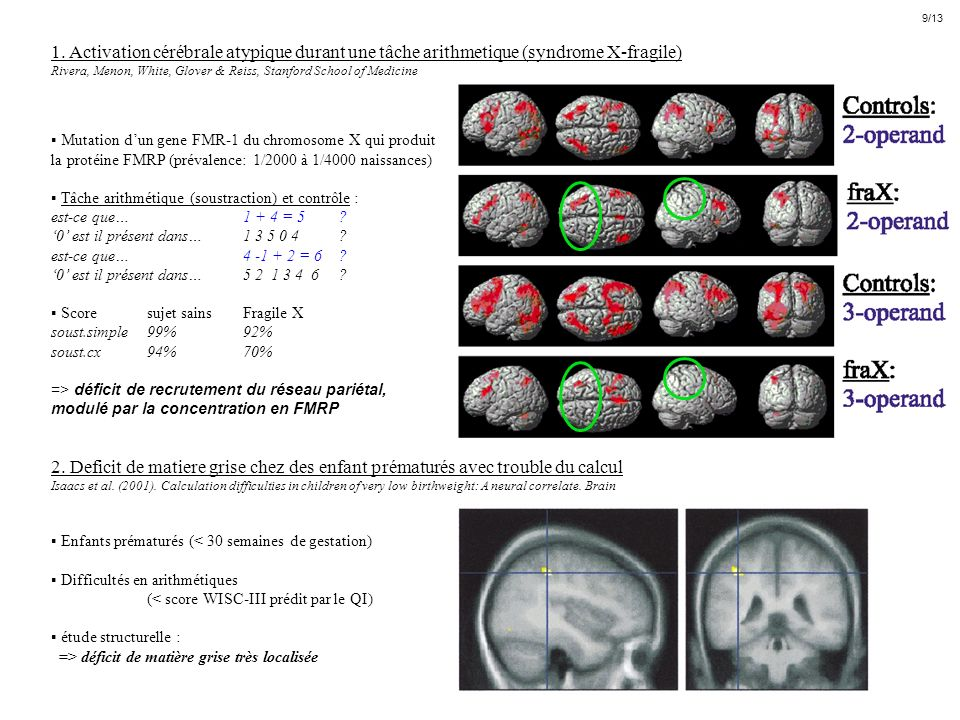 9/13 1. Activation cérébrale atypique durant une tâche arithmetique (syndrome X-fragile)