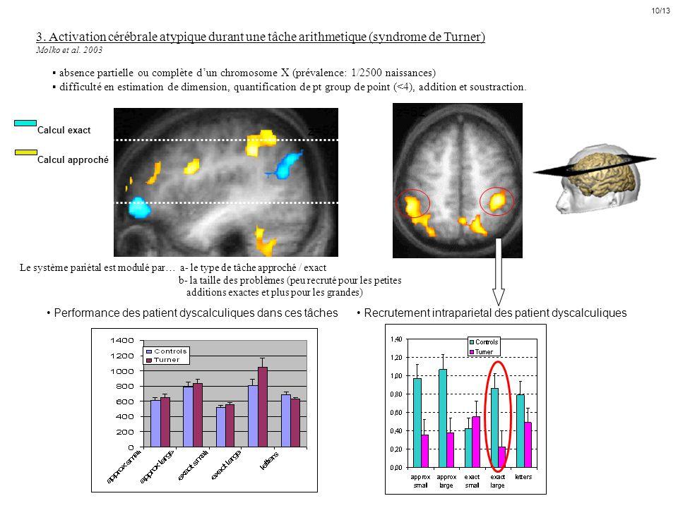 10/13 3. Activation cérébrale atypique durant une tâche arithmetique (syndrome de Turner) Molko et al. 2003.
