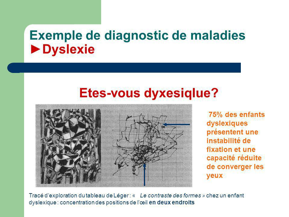 Exemple de diagnostic de maladies ►Dyslexie