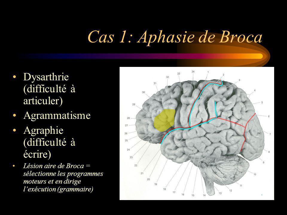 Cas 1: Aphasie de Broca Dysarthrie (difficulté à articuler)