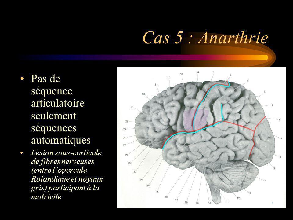 Cas 5 : Anarthrie Pas de séquence articulatoire seulement séquences automatiques.