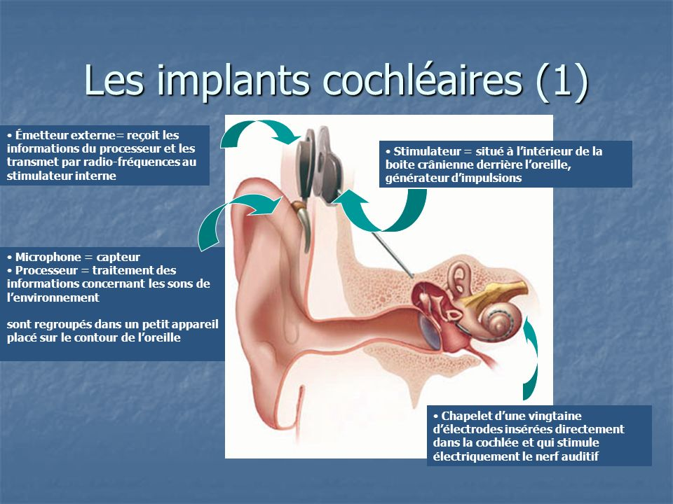 Les implants cochléaires (1)