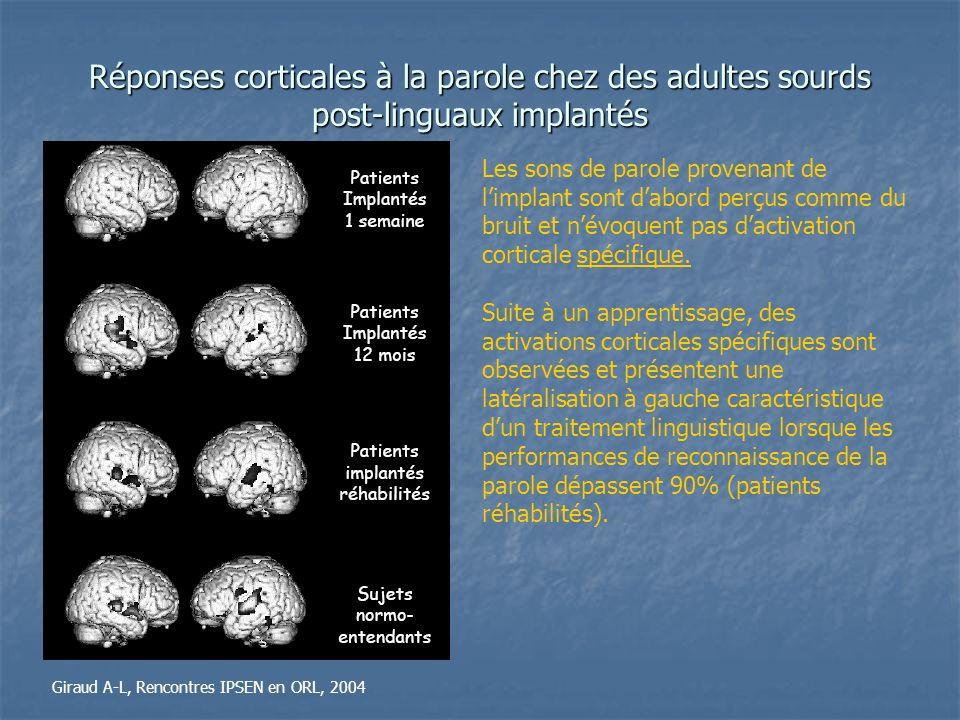Réponses corticales à la parole chez des adultes sourds post-linguaux implantés