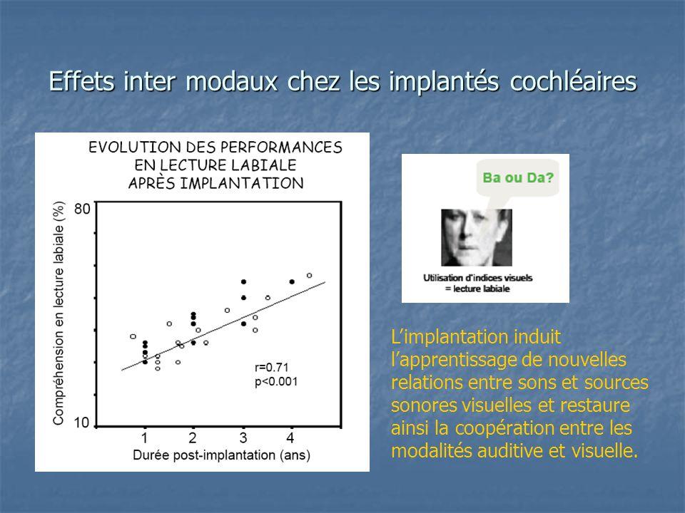 Effets inter modaux chez les implantés cochléaires