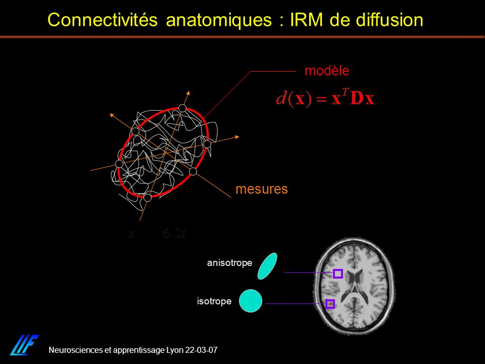 Connectivités anatomiques : IRM de diffusion