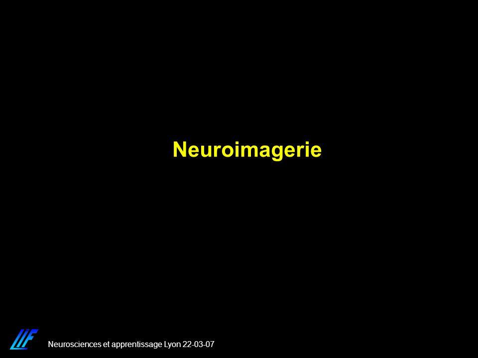 Neuroimagerie