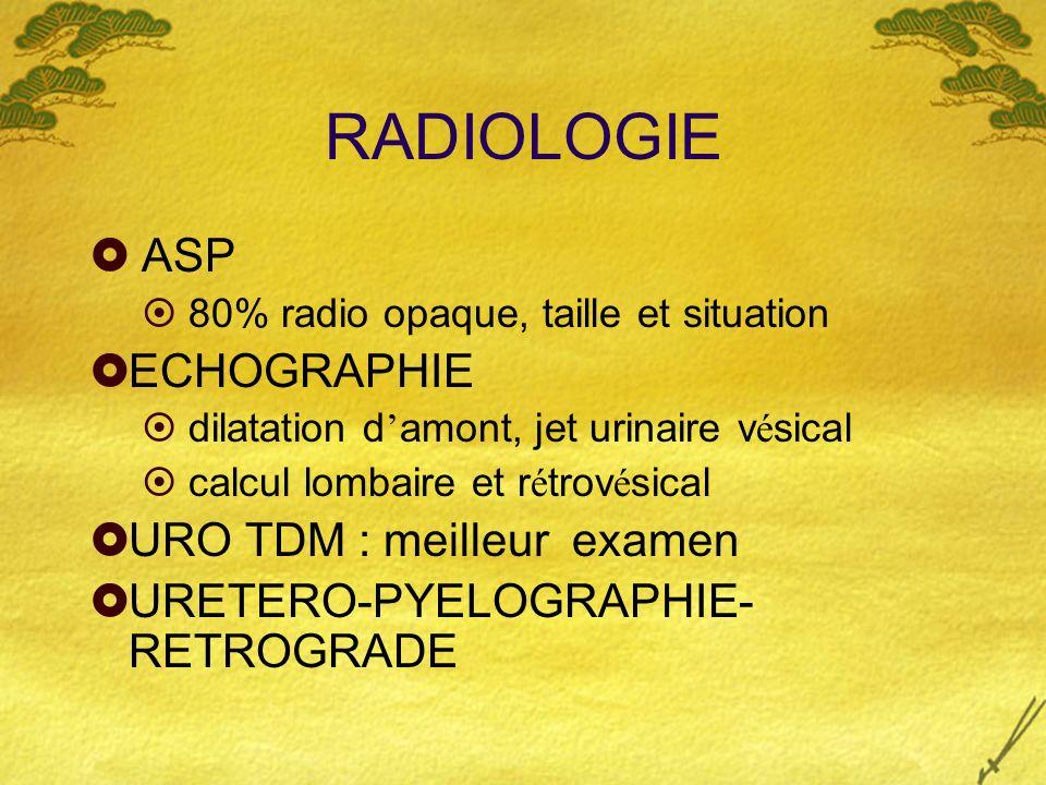 RADIOLOGIE ASP ECHOGRAPHIE URO TDM : meilleur examen