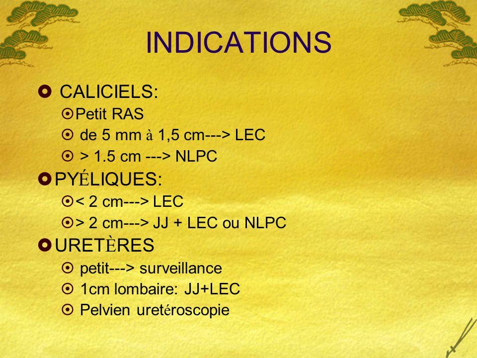 INDICATIONS CALICIELS: PYÉLIQUES: URETÈRES Petit RAS