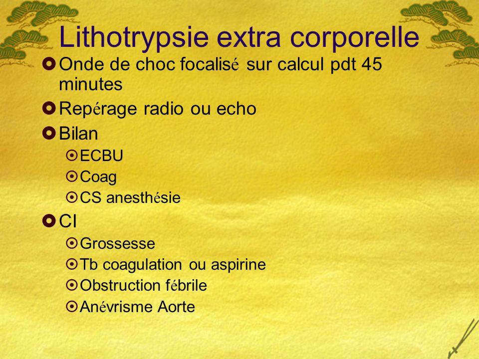Lithotrypsie extra corporelle