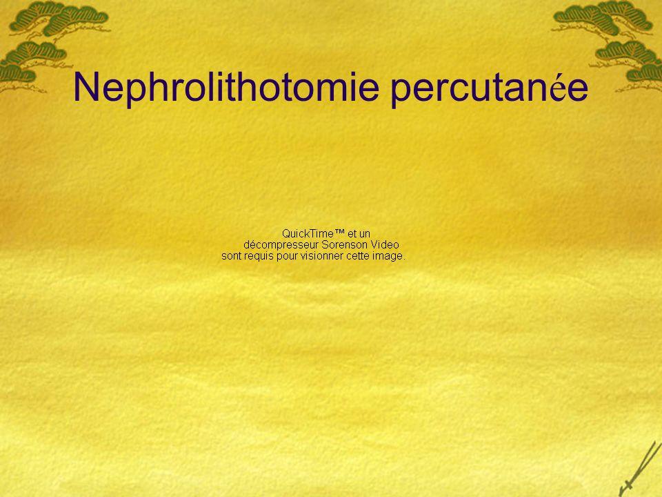 Nephrolithotomie percutanée