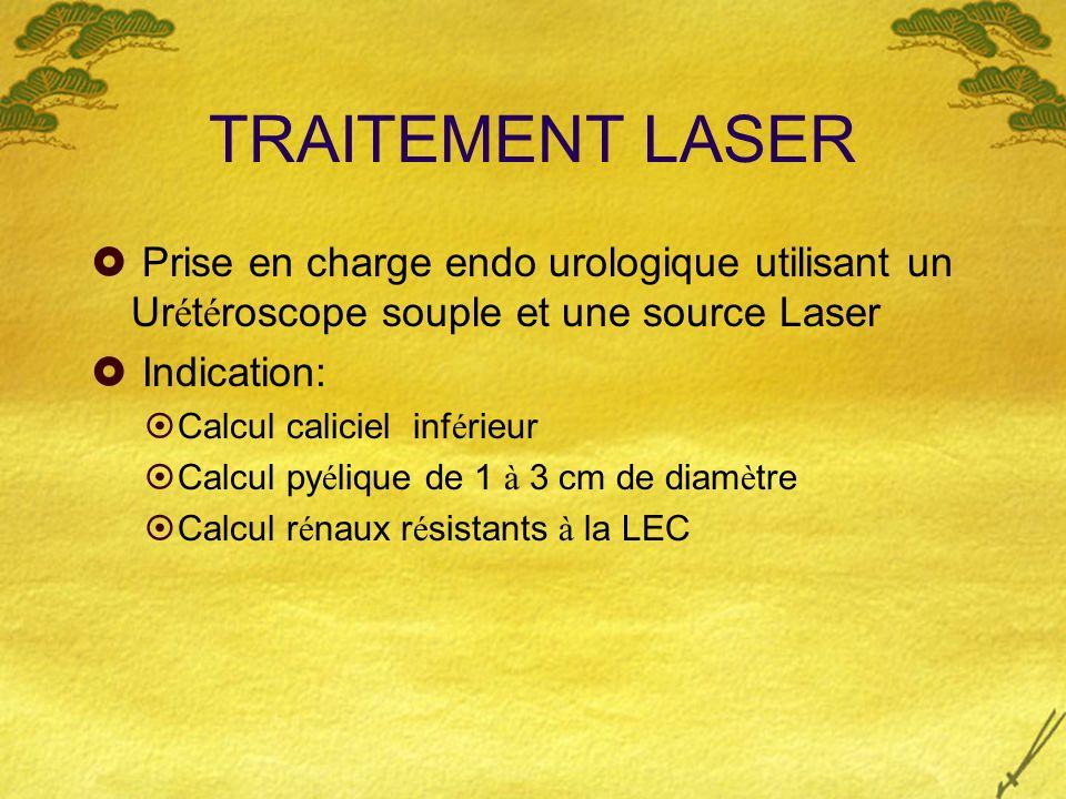 TRAITEMENT LASER Prise en charge endo urologique utilisant un Urétéroscope souple et une source Laser.