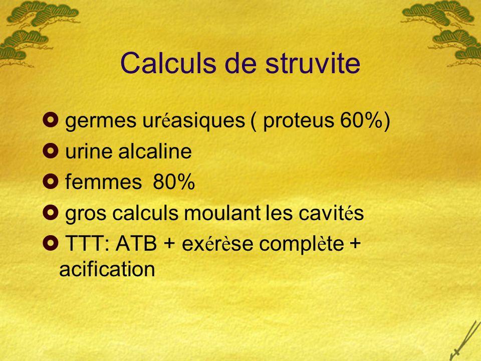 Calculs de struvite germes uréasiques ( proteus 60%) urine alcaline
