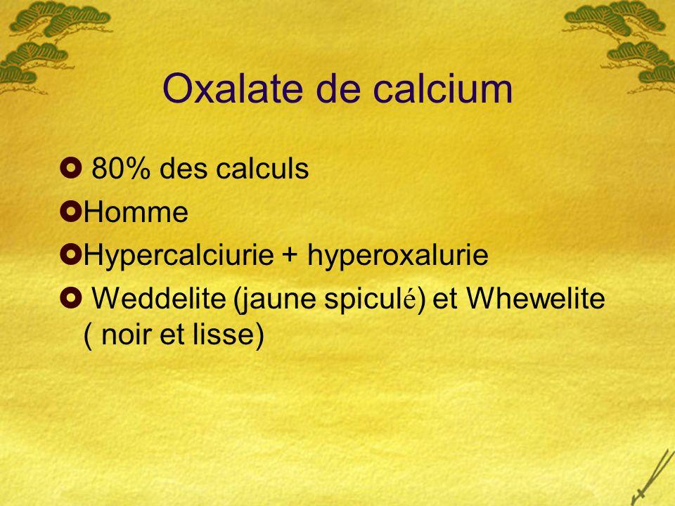 Oxalate de calcium 80% des calculs Homme