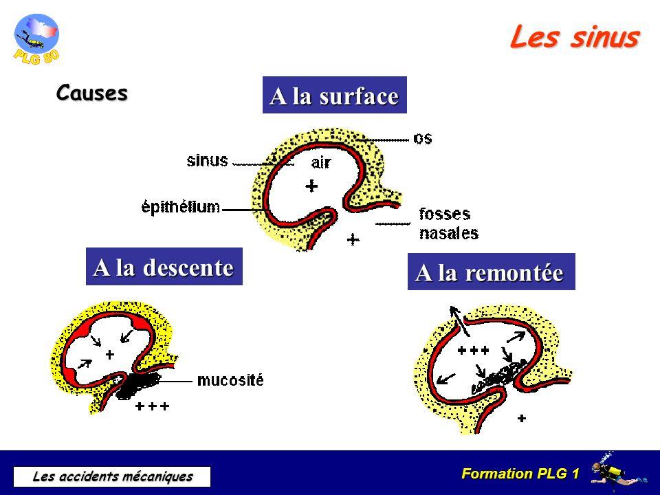 Les sinus A la surface A la descente A la remontée Causes b) Causes