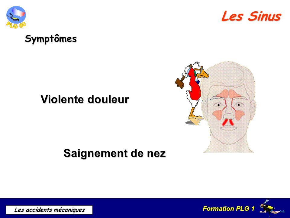 Les Sinus Violente douleur Saignement de nez Symptômes c) symptômes