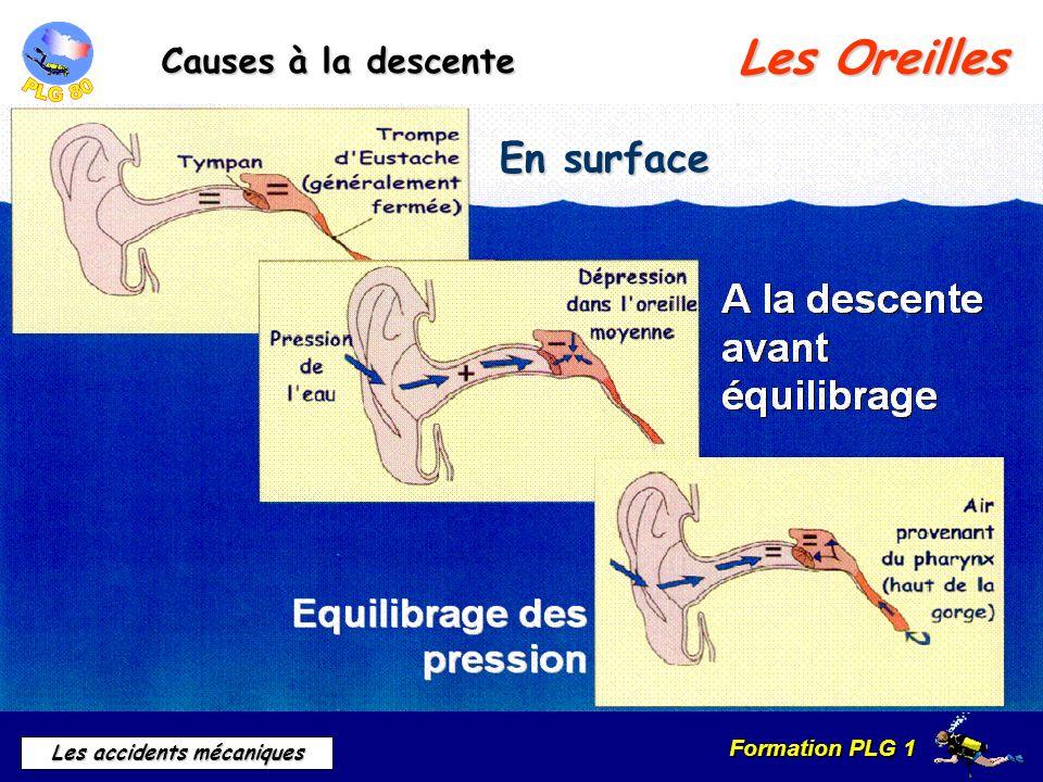 Les Oreilles En surface Causes à la descente b) Causes