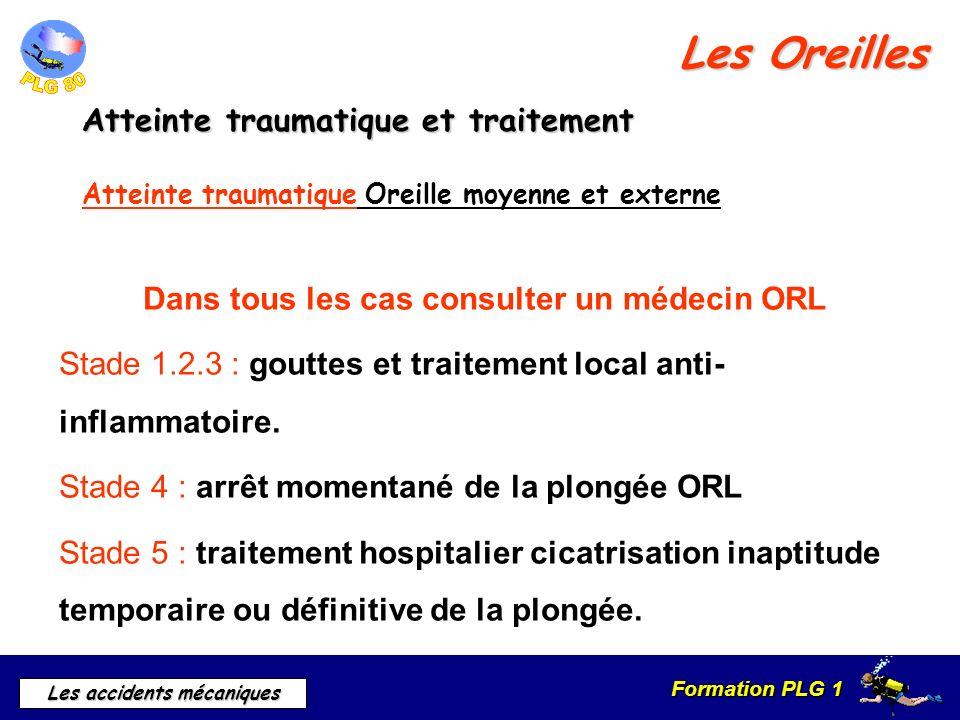 Dans tous les cas consulter un médecin ORL