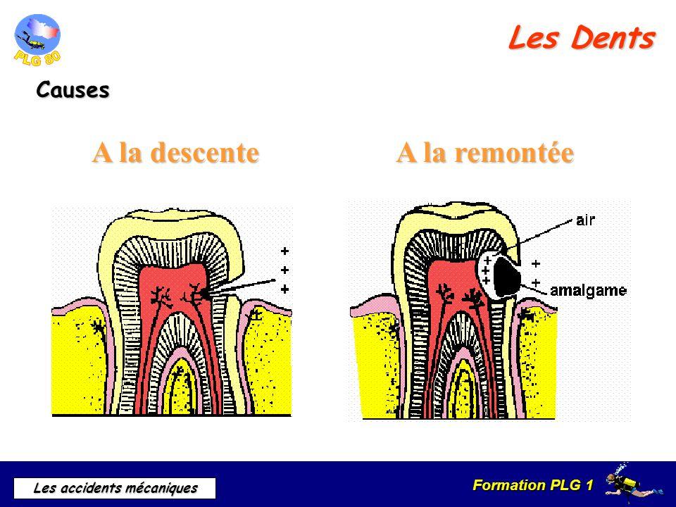 Les Dents A la descente A la remontée Causes · A la descente
