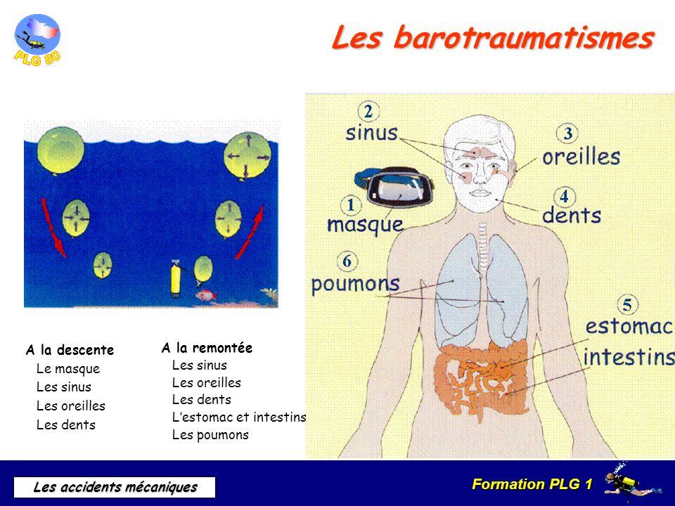 Les barotraumatismes A la descente Le masque Les sinus Les oreilles