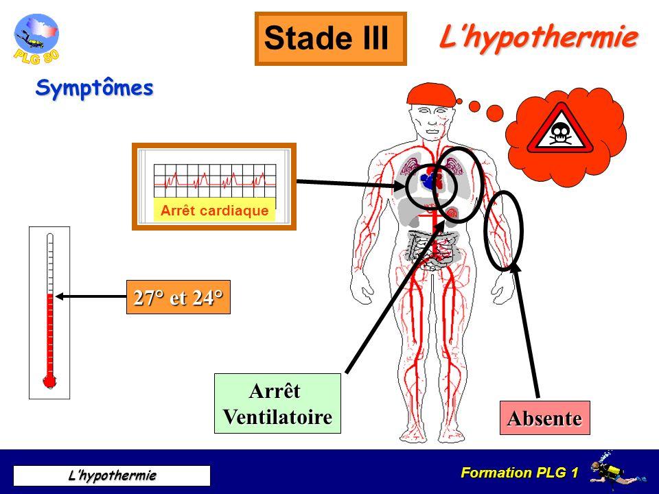 Stade III L'hypothermie Symptômes 27° et 24° Arrêt Ventilatoire