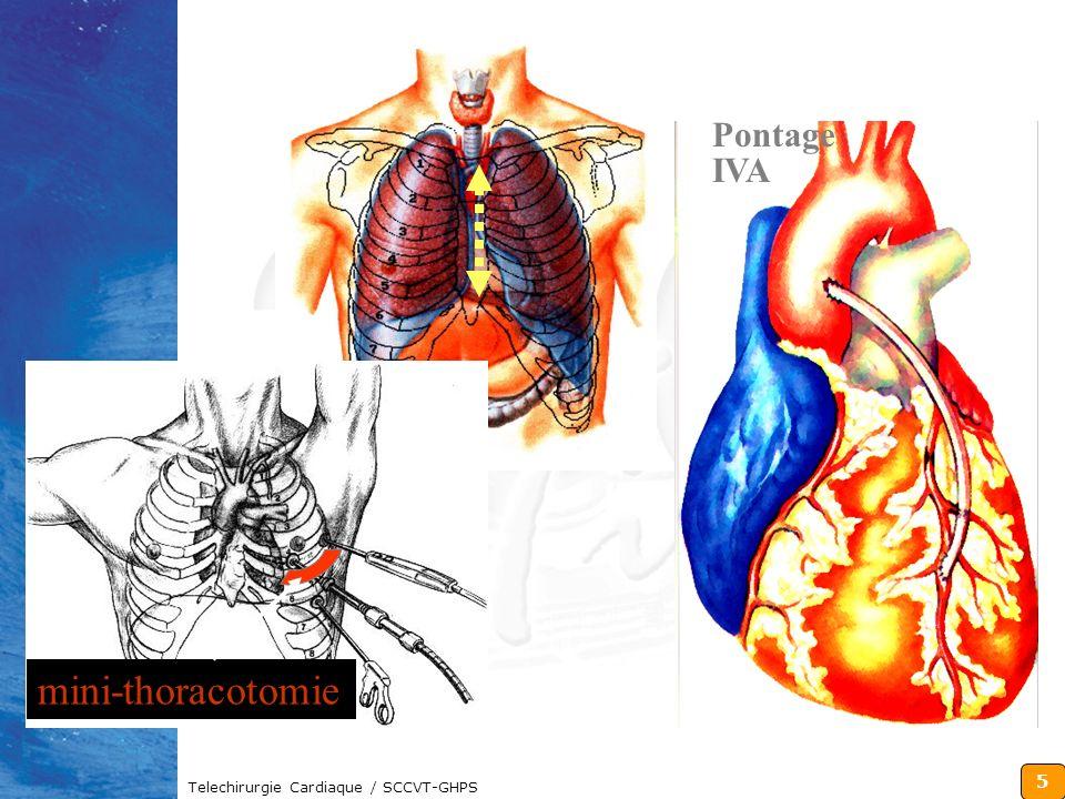 Pontage IVA mini-thoracotomie Telechirurgie Cardiaque / SCCVT-GHPS