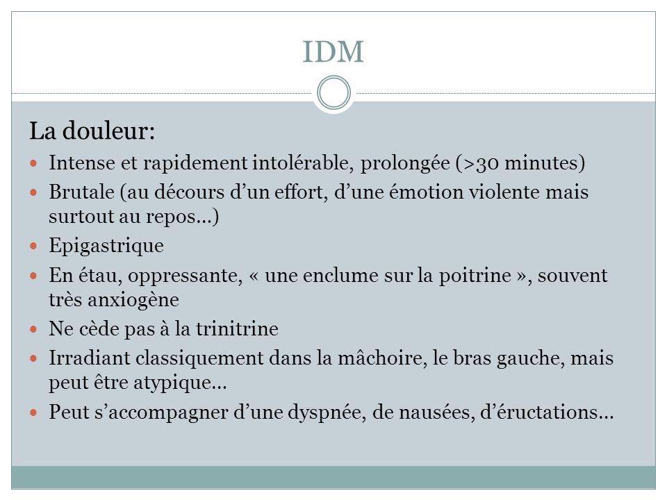 IDM La douleur: Intense et rapidement intolérable, prolongée (>30 minutes)